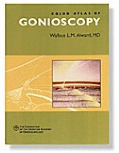Download Color Atlas of Gonioscopy